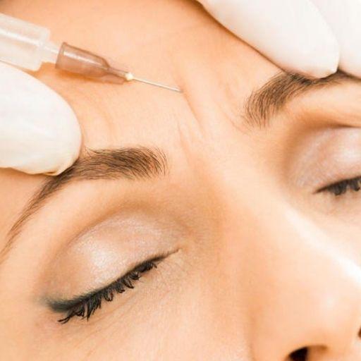 tratamiento botox frente y entrecejo